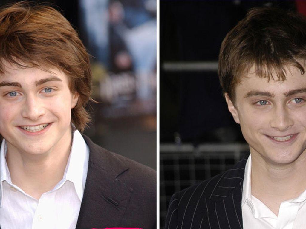 Daniel Radcliffe im Laufe der Jahre