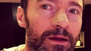 Hugh Jackman mit Pflaster auf der Nase
