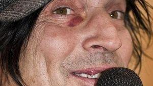 Tommy Lee mit blauem Auge