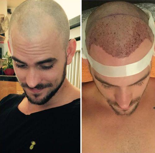 Marc Barthel ließ eine Haartransplantation durchführen