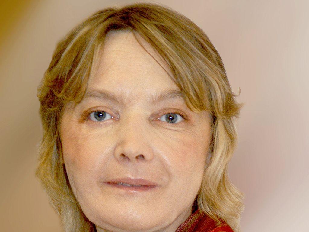 Isabelle Dinoire nach ihrer Operation 2006