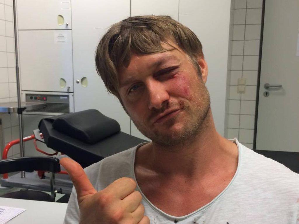 Nico Schwanz nach seinem Sport-Unfall