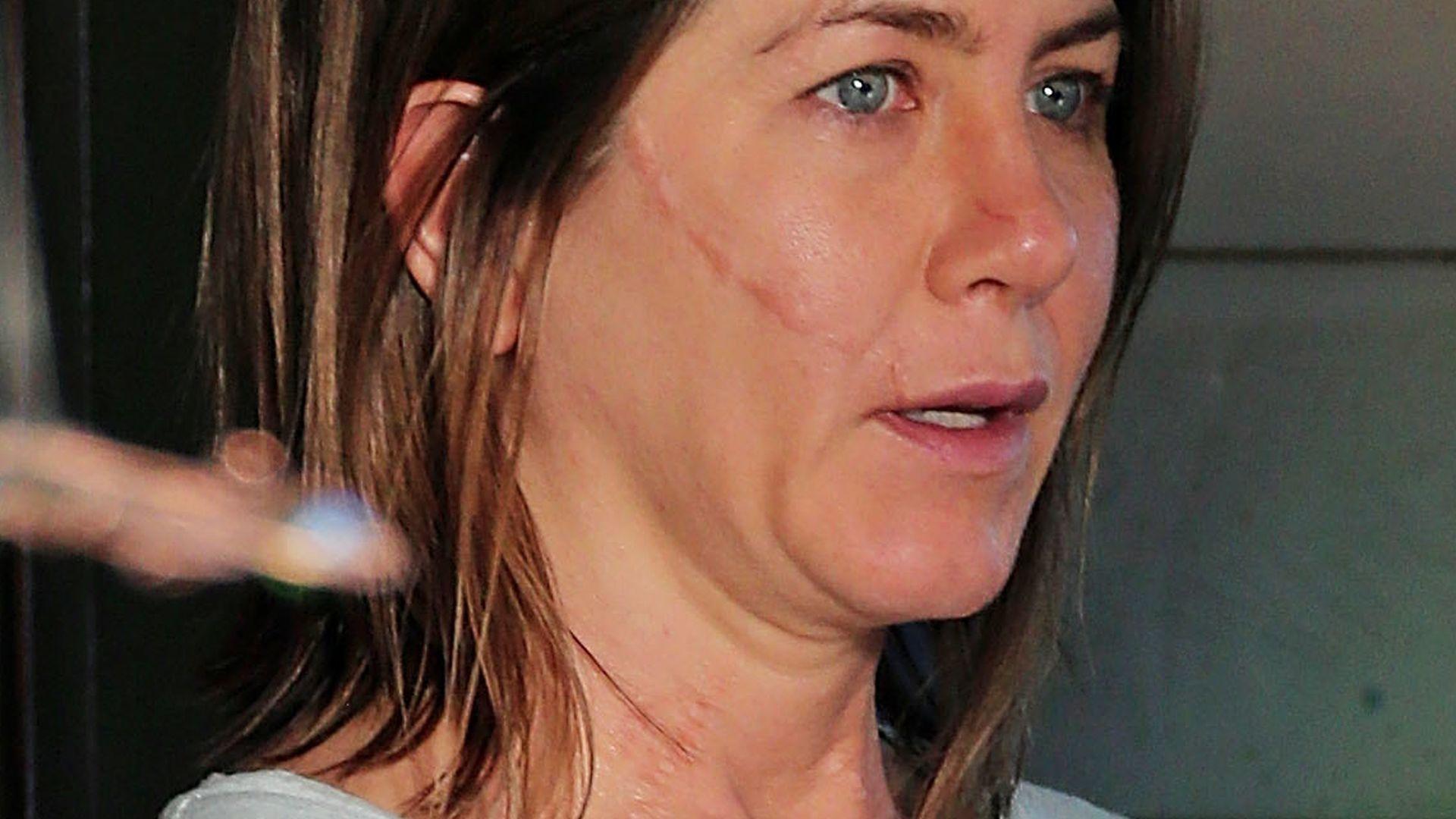 Narben Im Gesicht