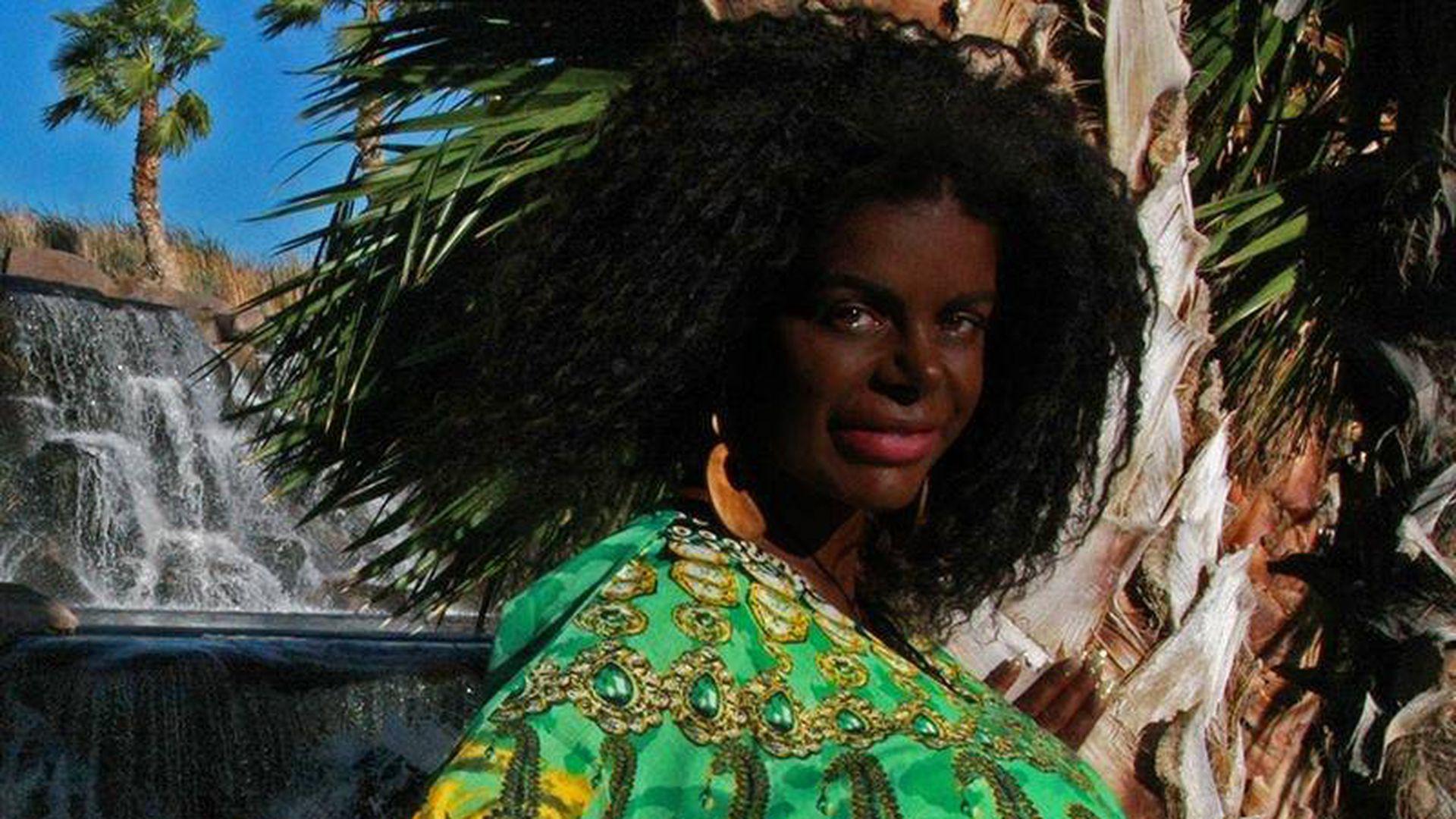 Wird Martina Big Wegen Ihrer Neuen Hautfarbe Etwa Gehatet  Promiflashde-5025