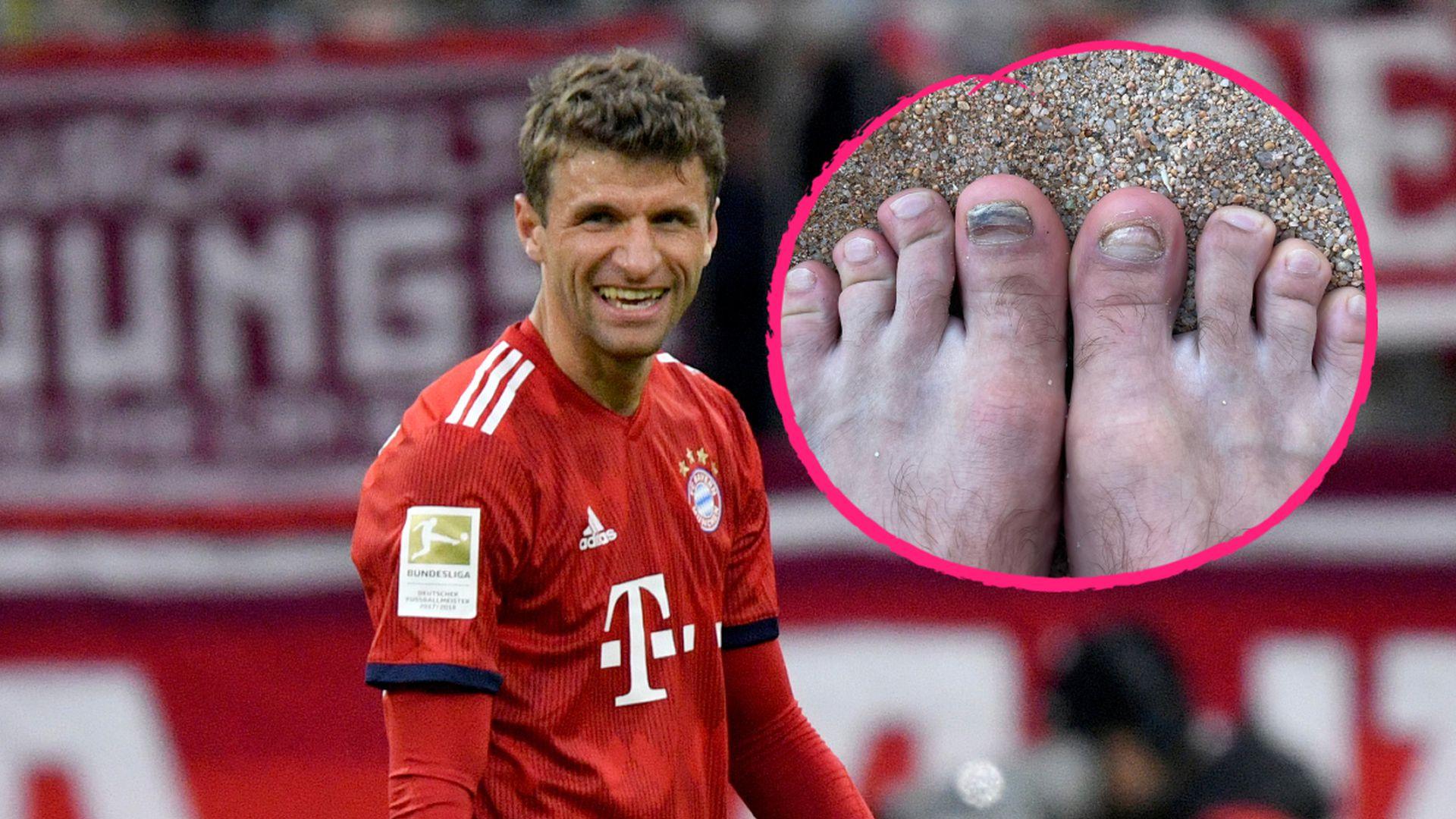 Kickerleiden: Thomas Müller witzelt über kaputte Fußnägel