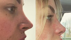 Vorher-Nachher-Foto: Aline Bachmann präsentiert neue Nase