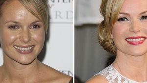 Beauty-Falle: Amanda Holdens starke Veränderung