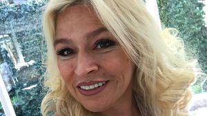 Nach Krebstod: Doku zeigte jetzt Beth Chapmans Chemo-Beginn