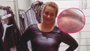 """Wegen Abnahme: """"Biggest Loser""""-Melissa hatte Haarausfall"""
