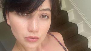 Nervenzusammenbruch: Daisy Lowe verlor büschelweise Haare!