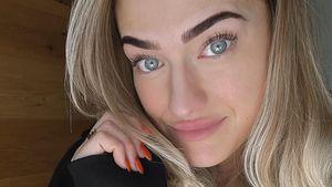 Fans irritiert: Hat Bachelor-Mimi ihre Lippen machen lassen?