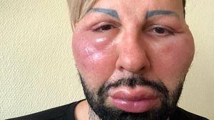 Unbekannte Allergie! Harald Glööcklers Gesicht zugeschwollen
