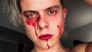 Sex-Story? Jonas Ems schockiert mit Menstruations-Blut-Pic