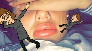 Kim Gloss mit dicken Lippen nach einer allergischen Reaktion