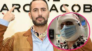 Dicke Gesichtsbandagen: Marc Jacobs gönnte sich Facelifting