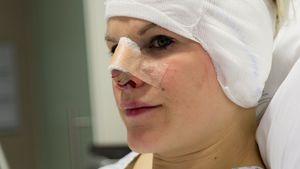 OP-Horror: Melanie Müller hat nun ein Stück Ohr in der Nase!