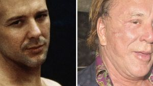 Mickey Rourke: Vom Beau zum Beauty-OP-Opfer