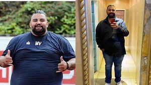 """""""Biggest Loser""""-Mokka hat sich den Magen verkleinern lassen"""