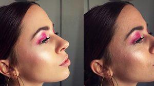 Ohne Photoshop: Vanessa Mai zeigt ihre unreine Haut