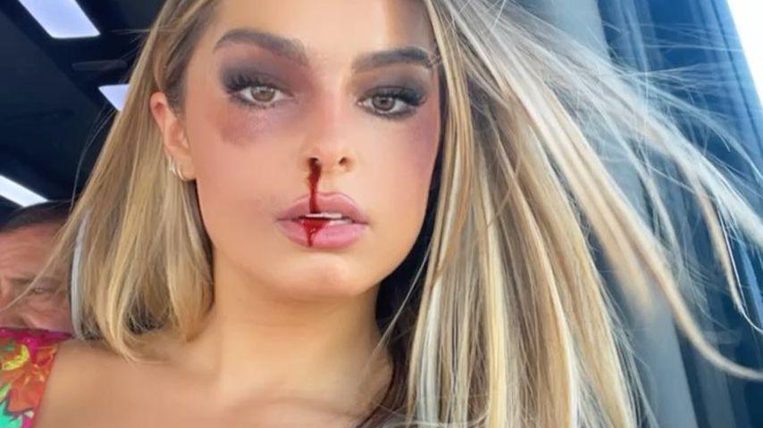 Addison Rae mit einem Nasenbluten-Filter