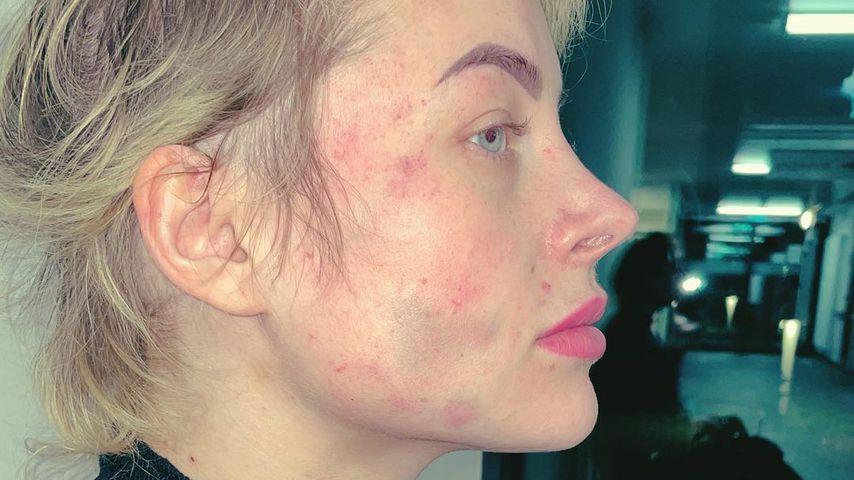 Heftige Fotos: Aline Bachmann vom Ex grün und blau geprügelt