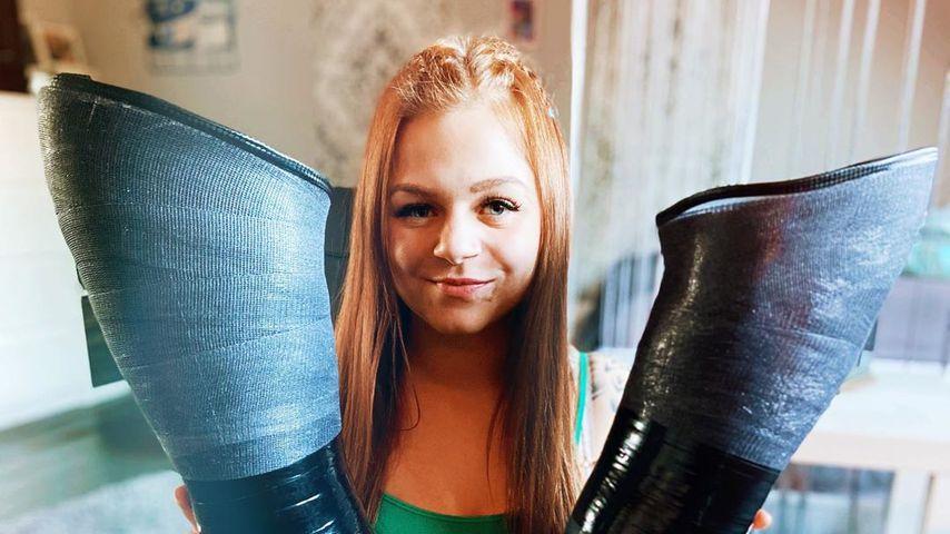 Beide Beine bei Unfall verloren: Angie wird zum TikTok-Star