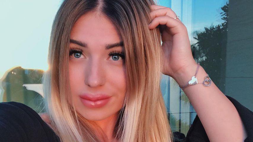 Mega-Shitstorm für Bibi: Hat sie etwa dicke Botox-Lippen?