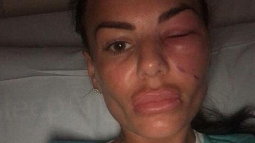 """Allergieschock: Spinnen-Biss bei """"Geordie Shore""""-Chantelle"""
