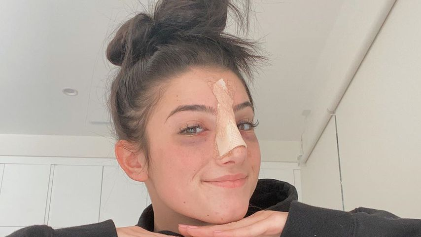 Beauty-Eingriff? TikTok-Star Charli D'Amelio hatte Nasen-OP