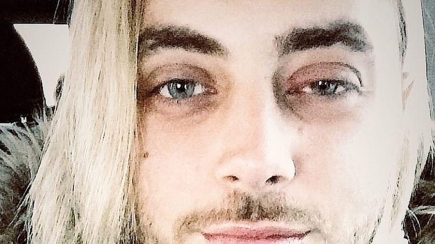 """Jochbein gebrochen: Operation bei """"Biggest Loser""""-Christos!"""