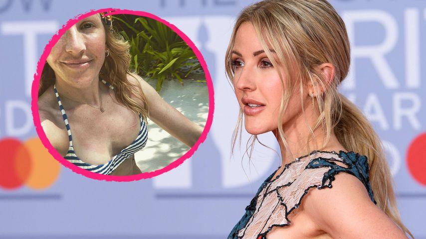 Etwas zu heiß: Ellie Goulding verbrannte sich ihre Brüste!