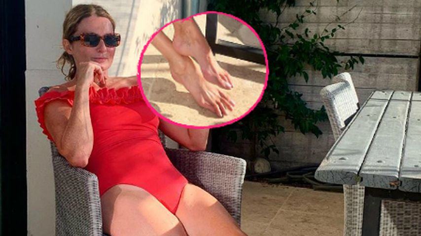 Photoshop-Füße? Frauke Ludowig sorgt mit Zehen für Aufsehen