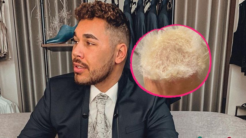 Mit Blondierung im Lift gefangen: BTN-Star fallen Haare aus