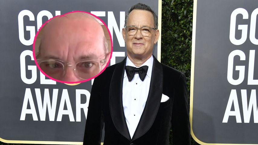 """""""Schrecklich"""": Tom Hanks trägt für neue Filmrolle Glatze!"""