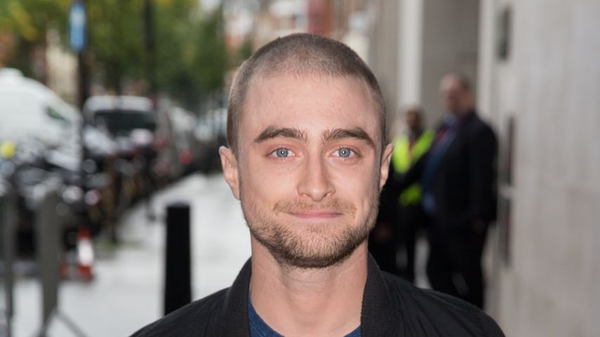 Oben ohne-Schock: Daniel Radcliffe trägt jetzt Glatze