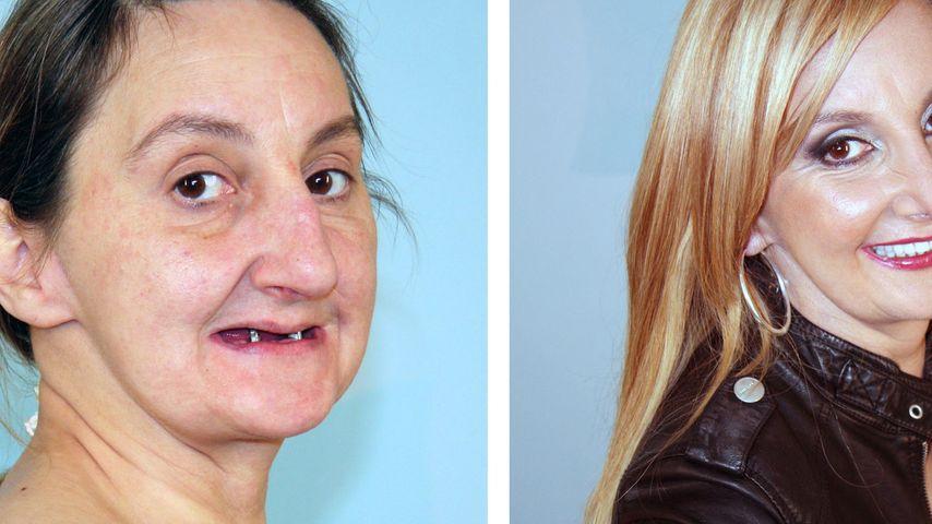 Extrem schön: Von nur 2 Zähnen zum Traumlächeln