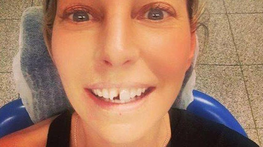 Skurriler Unfall: Giulia Siegel schlägt sich einen Zahn aus