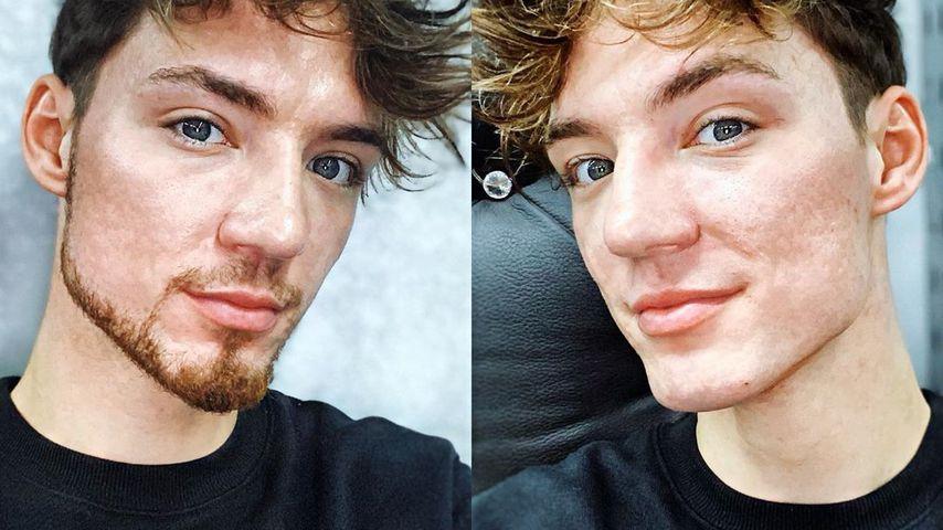 Mit oder ohne Bart: Was steht Heiko Lochmann besser?