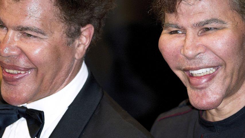 OP-Schreck: Botox-Zwillinge extrem verschnippelt!
