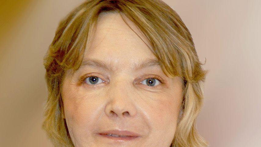Erste Frau mit transplantiertem Gesicht stirbt mit 49 Jahren