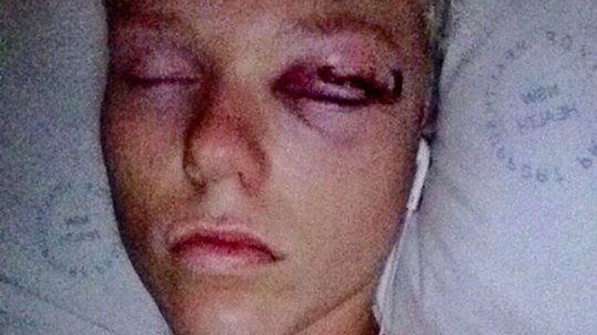 Jack Vidgen im Krankenhaus, 2014