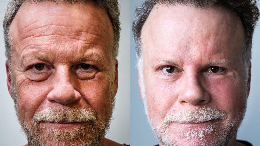 Jenke von Wilmsdorff vor und nach seinem Beauty-Experiment
