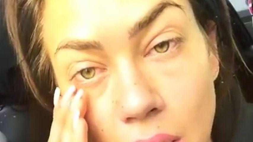 Komplett zugeschwollen: Jessica Paszka leidet unter Allergie