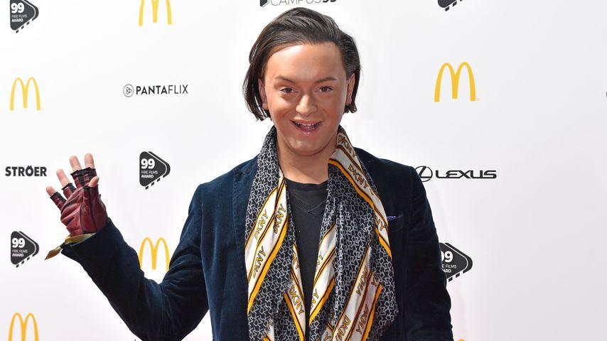 """""""Sehe aus wie 20"""": It-Boy Julian feiert Haartransplantation!"""