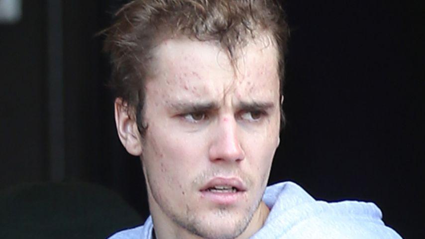 Pickel-Rückfall? Justin Bieber hat wieder schlechte Haut