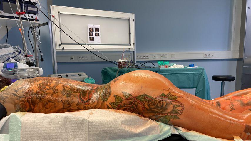 Kate Merlan nach ihrer Po-Operation