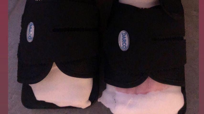 Kate Merlans Füße nach der OP