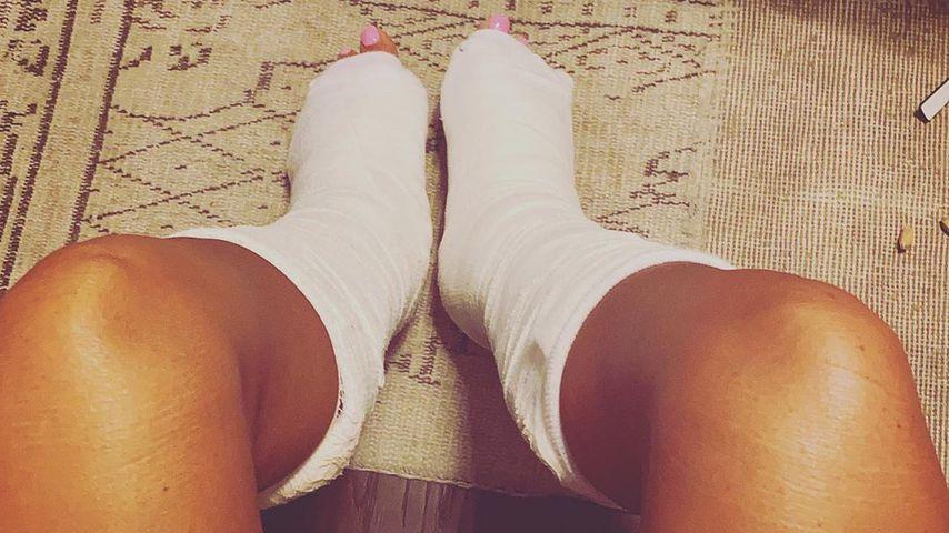 Katie Price zeigt ihre eingegipsten Beine