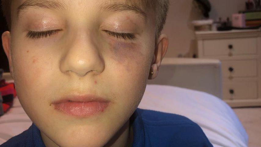 Kerry Katonas Sohn Max mit Blutergüssen im Gesicht