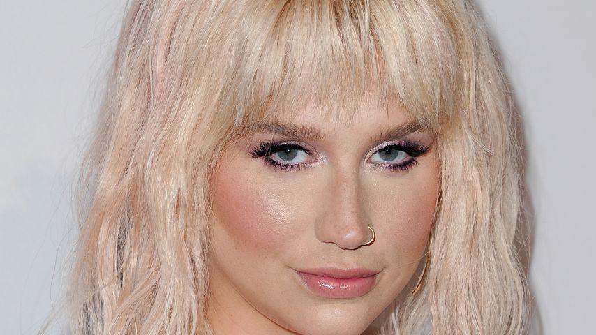 Kanarienvogel? Kesha zeigt ihre neongrün-gelbe Frisur